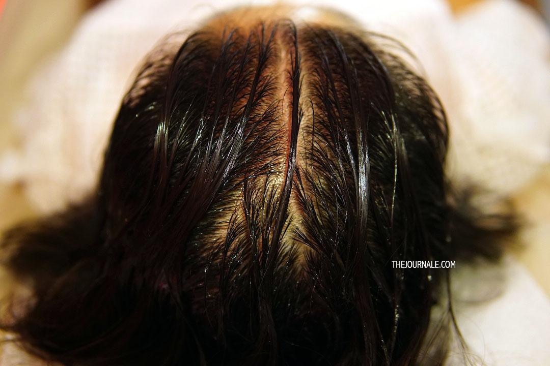Pertolongan untuk Rambut Rontok dan Kulit Kepala Gatal [REVIEW]